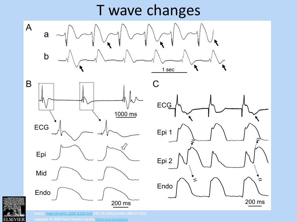 T wave changes