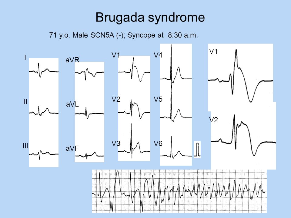 Brugada syndrome 71 y.o. Male SCN5A (-); Syncope at 8:30 a.m. I II III