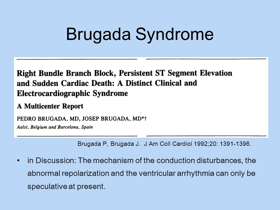Brugada Syndrome Brugada P, Brugada J. J Am Coll Cardiol 1992;20: