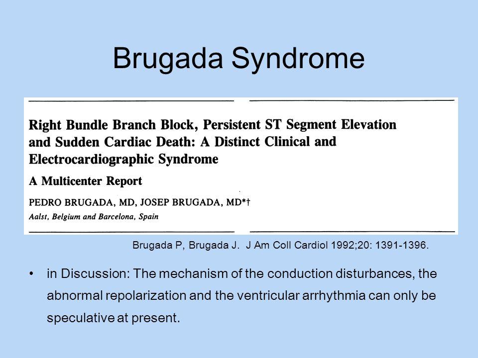 Brugada Syndrome Brugada P, Brugada J. J Am Coll Cardiol 1992;20: 1391-1396.
