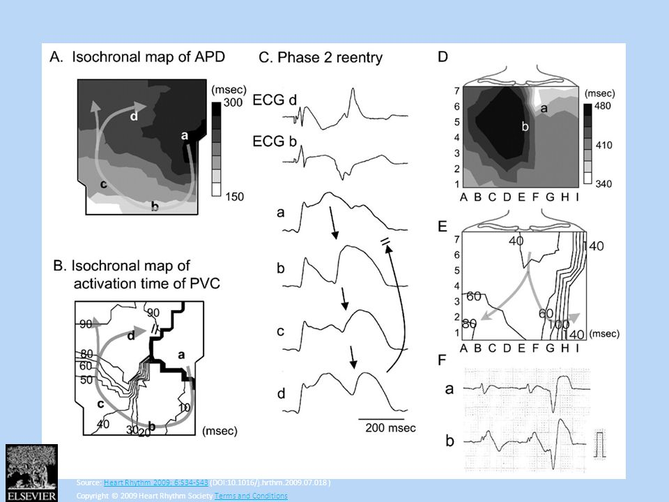 Ventricular arrhythmias induced by epicardial heterogeneity of AP in a canine RVOT model (A–C) and in a 48-year-old male with BrS (D–F). Experiment (A: APD map; B: activation isochronal map; C: local ECGs and APs from the sites indicated in A and B): Large phase 2 dome conducted (along the arrows) from the long APD region (site a, black color in A) to the short APD region (sites b and c, light color), then reentered the long APD region (site d), and was finally blocked by refractoriness (B and C). Local transmural ECGs (C) showed ST elevation with negative T wave in the long APD region (site d) and large ST elevation in the short APD region (site b). BrS was induced by pinacidil (10.0 μM), terfenadine (2.0 μM), and pilsicainide (12.5 μM). Patient (87-lead body surface map): The distribution of QT intervals in the anterior chest (D) shows that the upper chest (the RVOT region) had simultaneous presences of both short and long QT intervals (a and b), resembling the APD heterogeneity in the epicardium of canine RVOT model of BrS (A). The isochronal map (E) shows the RVOT origin of PVC. J-ST elevation occurred in the local ECGs at both sites a and b (F). Site a had a short QT interval without a negative T wave.