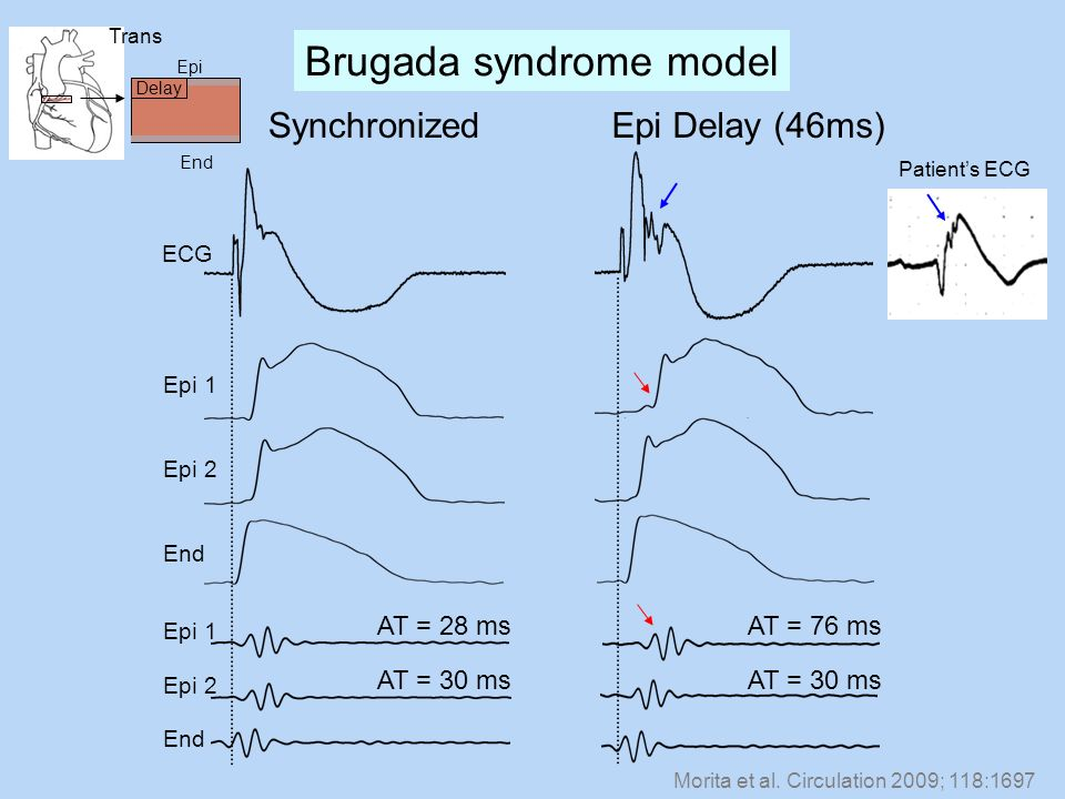 Brugada syndrome model