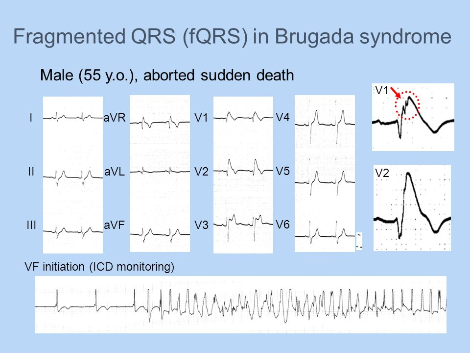 Fragmented QRS (fQRS) in Brugada syndrome
