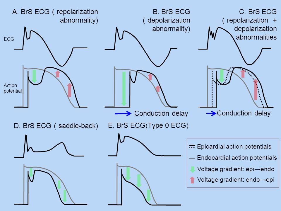 A. BrS ECG(repolarization abnormality)