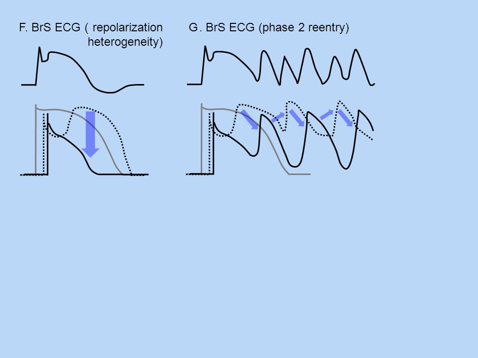 F. BrS ECG(repolarization heterogeneity)