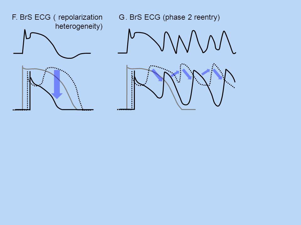 F. BrS ECG(repolarization heterogeneity)
