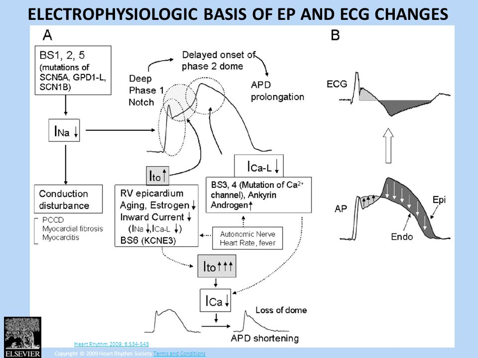 ELECTROPHYSIOLOGIC BASIS OF EP AND ECG CHANGES