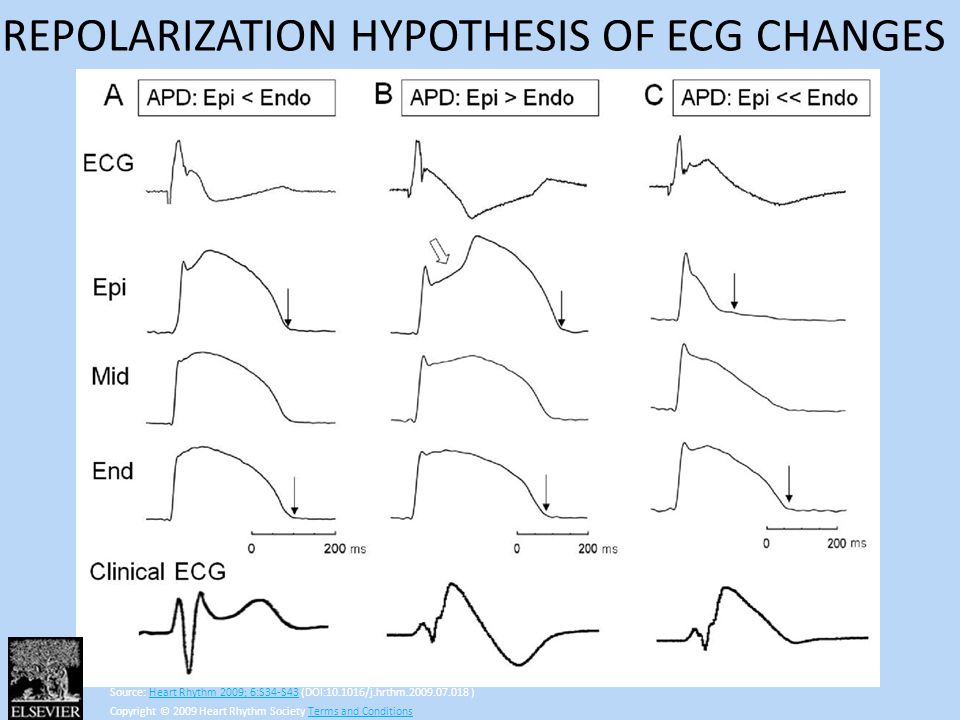 REPOLARIZATION HYPOTHESIS OF ECG CHANGES
