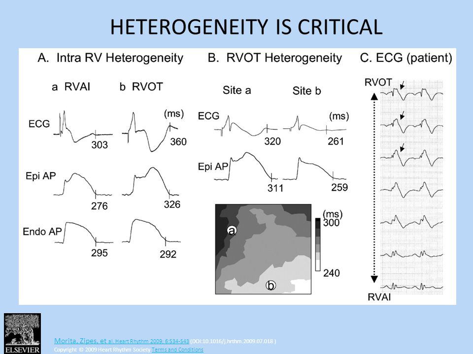 HETEROGENEITY IS CRITICAL