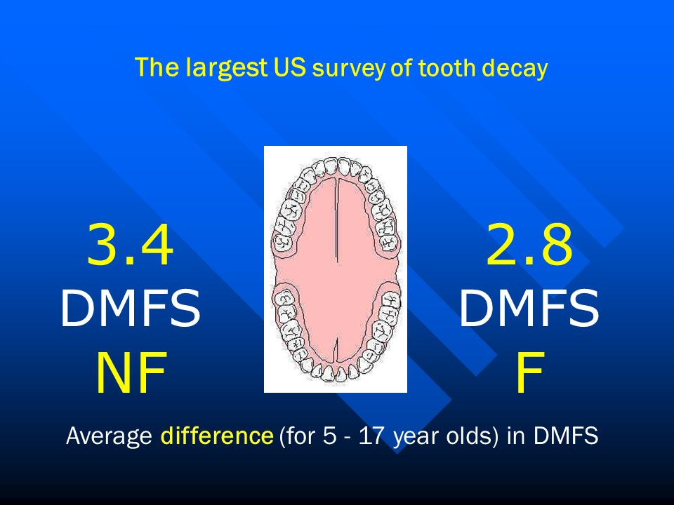 3.4 DMFS NF 2.8 F DMFS The largest US survey of tooth decay