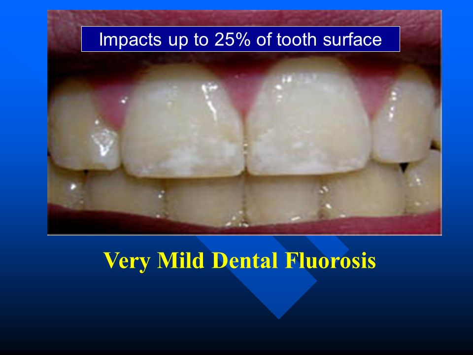 Very Mild Dental Fluorosis