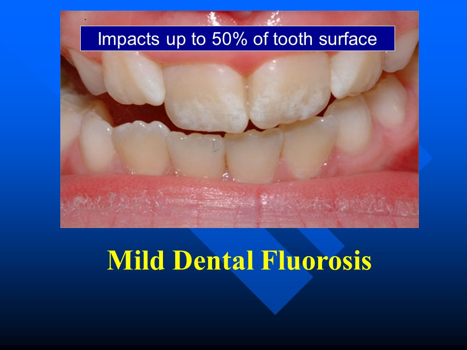 Impacts up to 50% of tooth surface