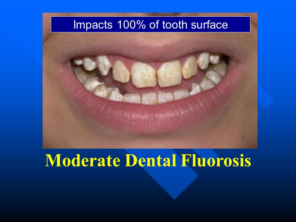 Moderate Dental Fluorosis