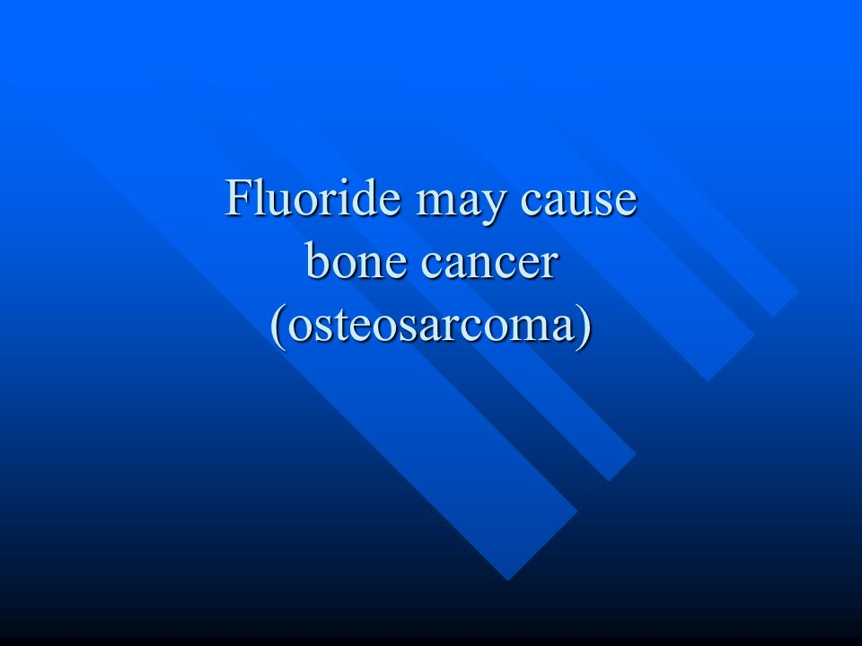 Fluoride may cause bone cancer (osteosarcoma)