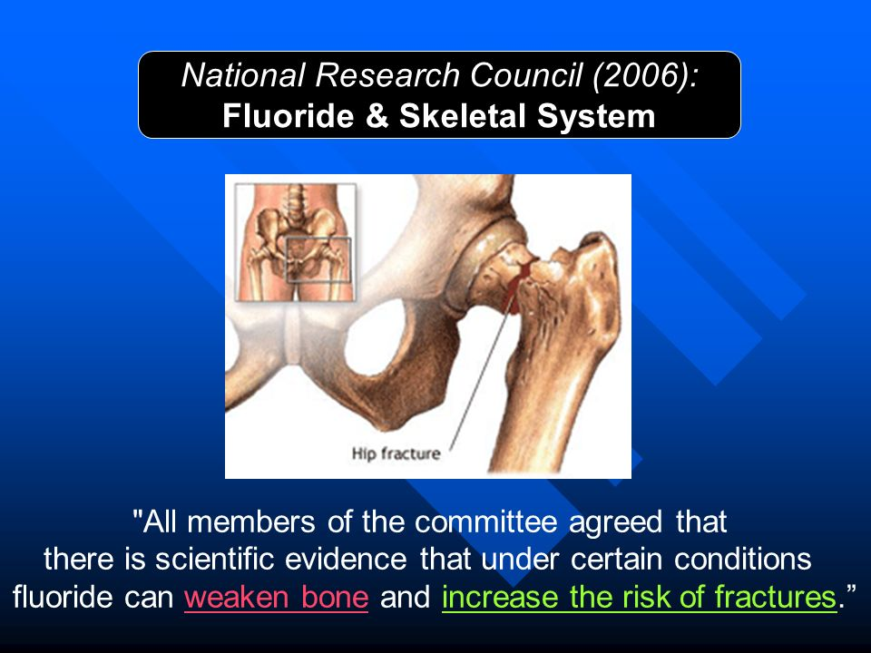 Fluoride & Skeletal System