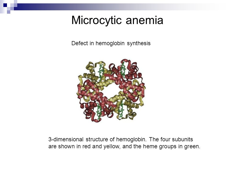 Microcytic anemia Defect in hemoglobin synthesis