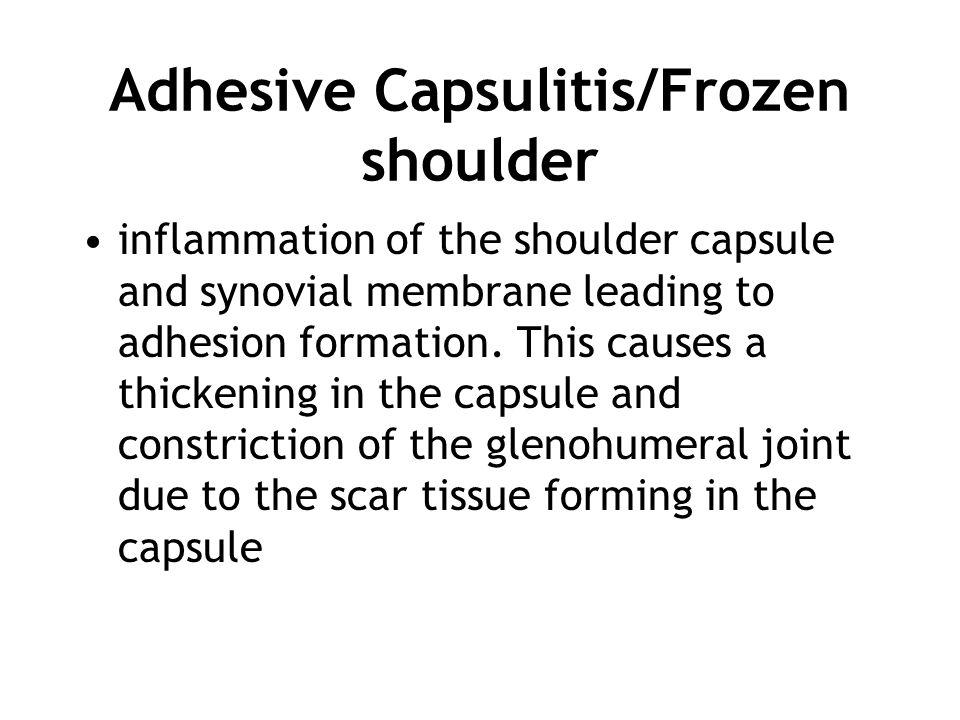 Adhesive Capsulitis/Frozen shoulder