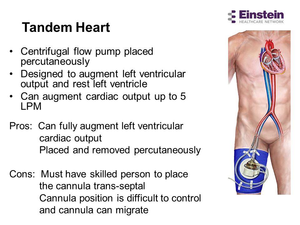 Tandem Heart Centrifugal flow pump placed percutaneously