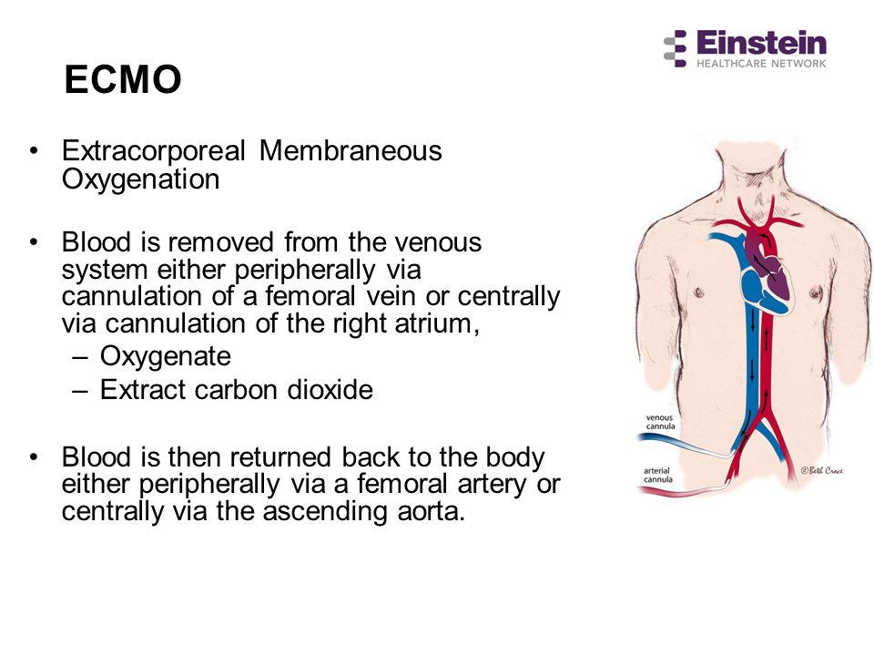 ECMO Extracorporeal Membraneous Oxygenation