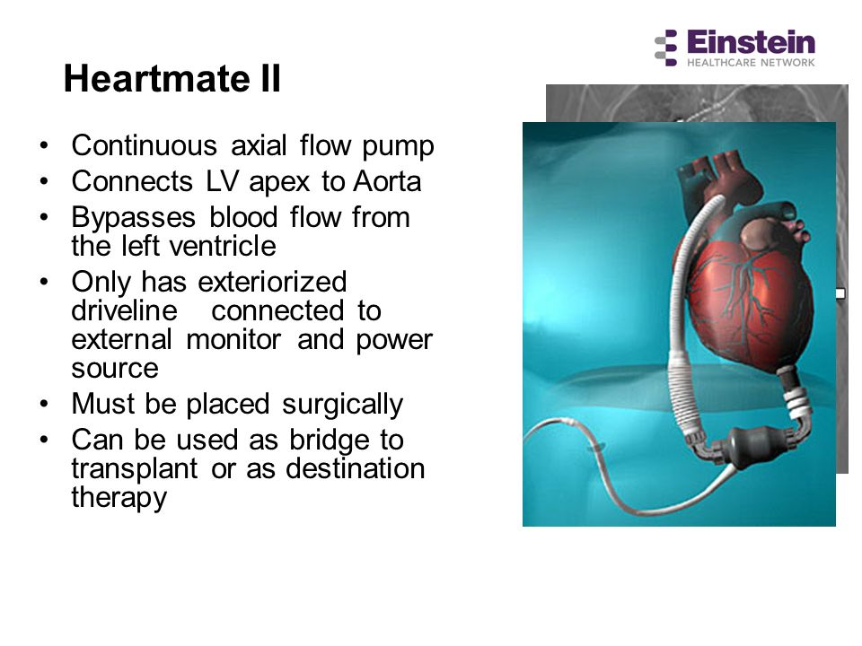 Heartmate II Continuous axial flow pump Connects LV apex to Aorta
