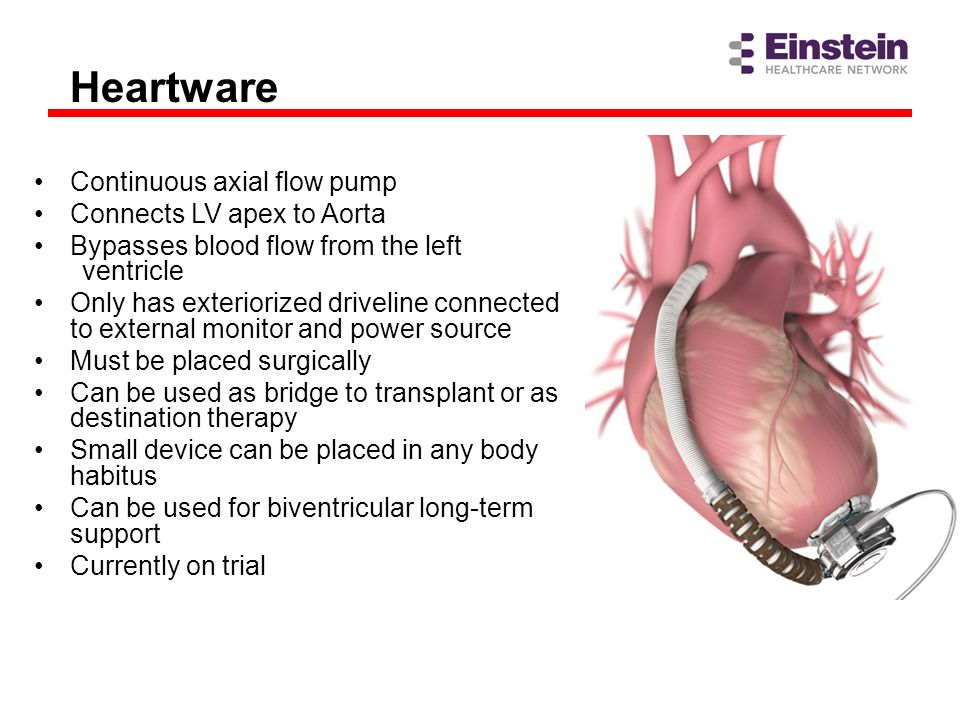 Heartware Continuous axial flow pump Connects LV apex to Aorta