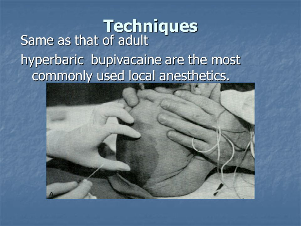 Techniques Same as that of adult hyperbaric bupivacaine are the most commonly used local anesthetics.