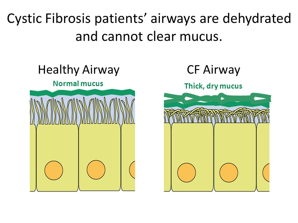Cystic Fibrosis patients' airways are dehydrated and cannot clear mucus.
