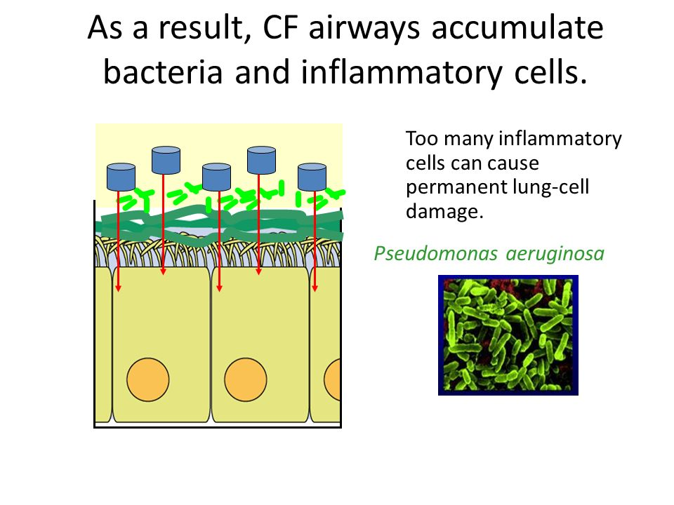 As a result, CF airways accumulate bacteria and inflammatory cells.