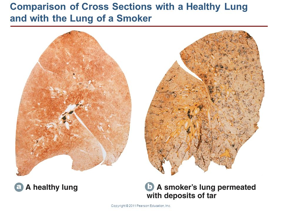Comparison of Cross Sections with a Healthy Lung and with the Lung of a Smoker