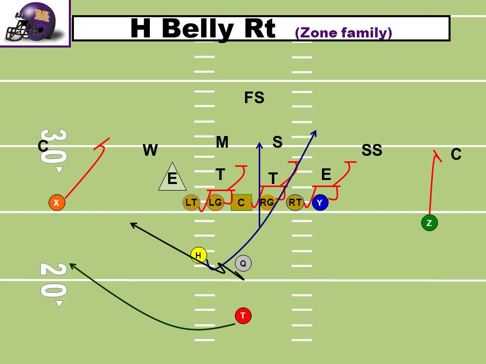 H Belly Rt (Zone family)