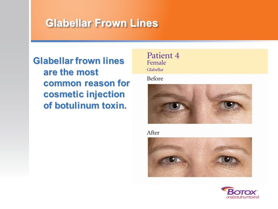 Glabellar Frown Lines Glabellar frown lines are the most common reason for cosmetic injection of botulinum toxin.