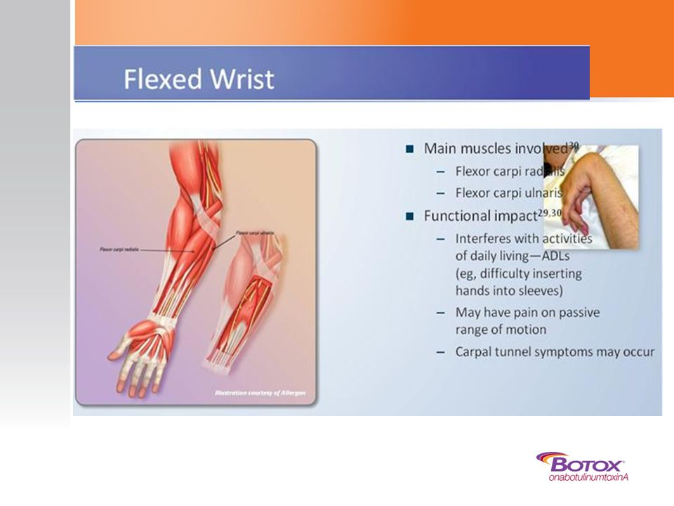 One typical synergy pattern of upper limb spasticity is flexed wrist