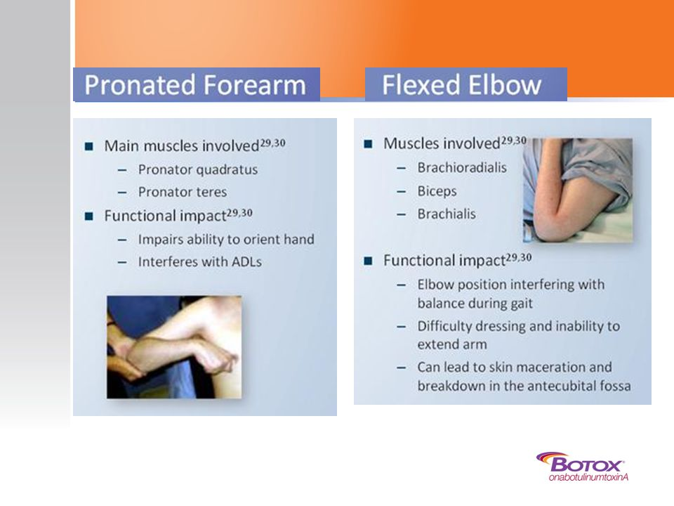 Pronated forearm is another typical synergy pattern of upper limb spasticity. The patient typically presents with a forearm that is pronated fully. It is commonly associated with a flexed elbow.30