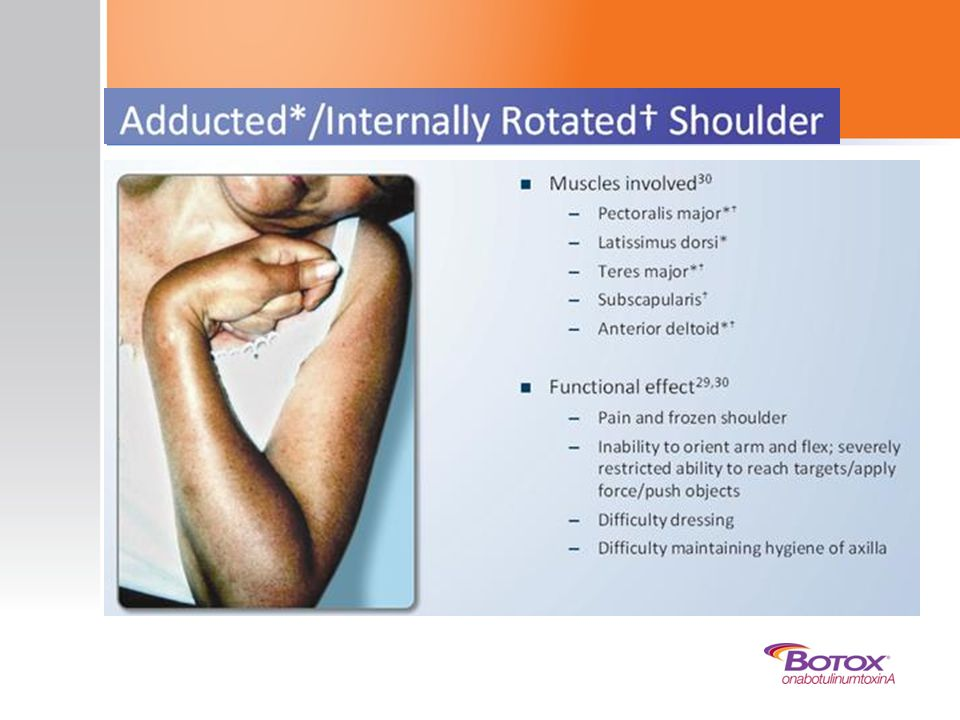 A final typical synergy pattern of upper limb spasticity is adducted or internally rotated shoulder. The patient typically has the arm adducted tightly, with the forearm lying against the middle of the chest.29