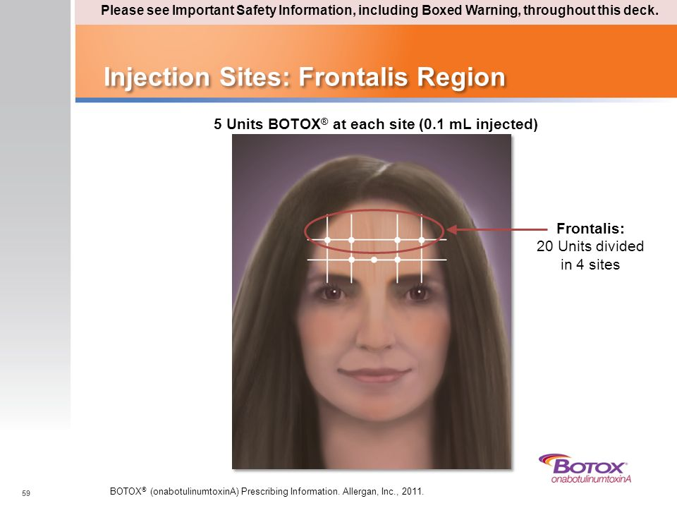 Injection Sites: Frontalis Region