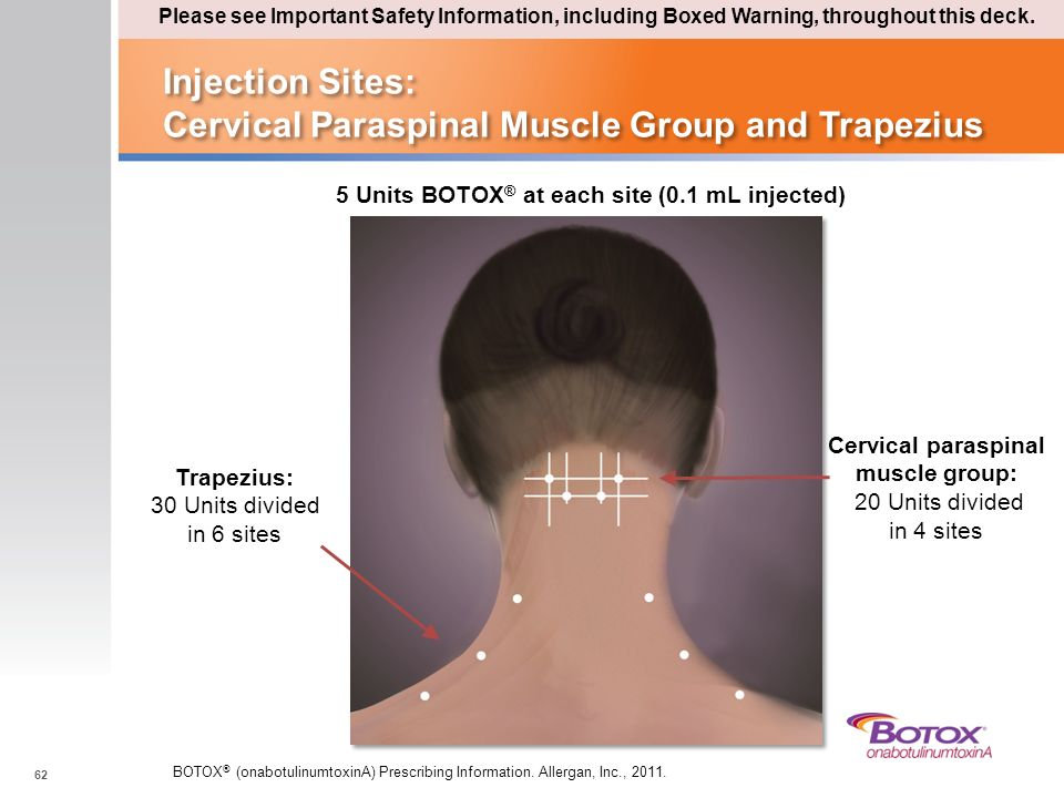 Injection Sites: Cervical Paraspinal Muscle Group and Trapezius
