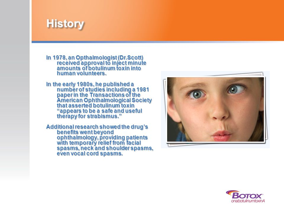 History In 1978, an Opthalmologist (Dr.Scott) received approval to inject minute amounts of botulinum toxin into human volunteers.