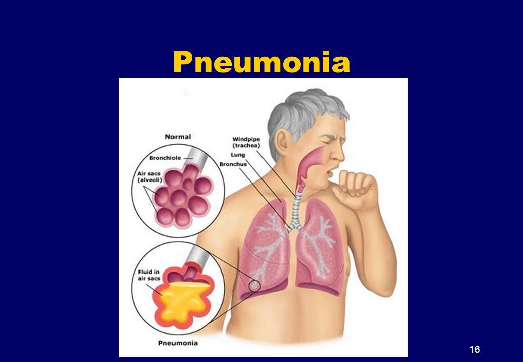 Pneumonia 16