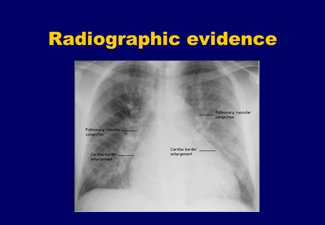 Radiographic evidence