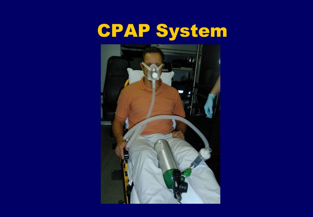 CPAP System CPAP CIRCUIT RECOMMENDED SET-UP.