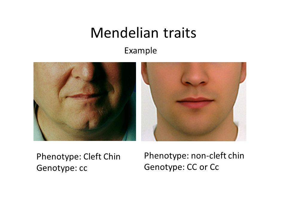 Mendelian traits Example Phenotype: Cleft Chin