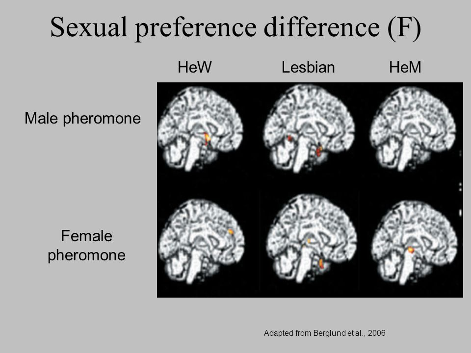 Sexual preference difference (F)