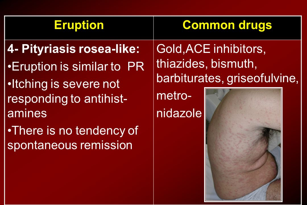 Common drugs Eruption. Gold,ACE inhibitors, thiazides, bismuth, barbiturates, griseofulvine, metro-