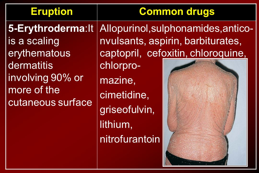 Common drugs Eruption. Allopurinol,sulphonamides,antico-nvulsants, aspirin, barbiturates, captopril, cefoxitin, chloroquine, chlorpro-