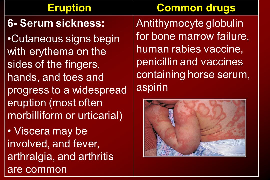 Common drugs Eruption. Antithymocyte globulin for bone marrow failure, human rabies vaccine, penicillin and vaccines containing horse serum, aspirin.
