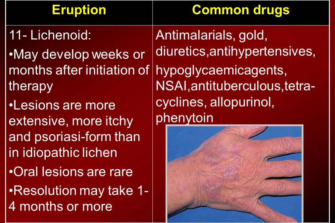 Common drugs Eruption. Antimalarials, gold, diuretics,antihypertensives,