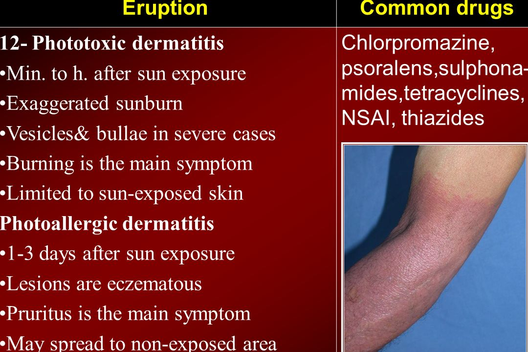 Common drugs Eruption. Chlorpromazine, psoralens,sulphona-mides,tetracyclines, NSAI, thiazides. 12- Phototoxic dermatitis.