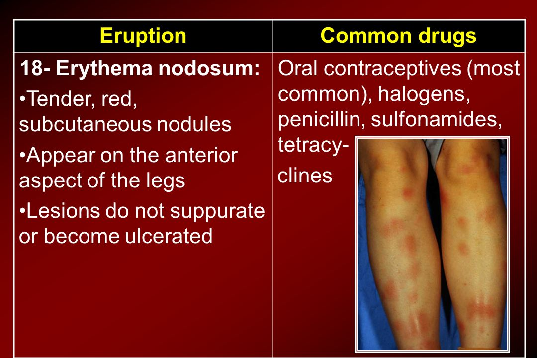 Common drugs Eruption. Oral contraceptives (most common), halogens, penicillin, sulfonamides, tetracy-