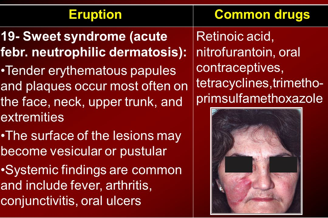 Common drugs Eruption. Retinoic acid, nitrofurantoin, oral contraceptives, tetracyclines,trimetho-primsulfamethoxazole.