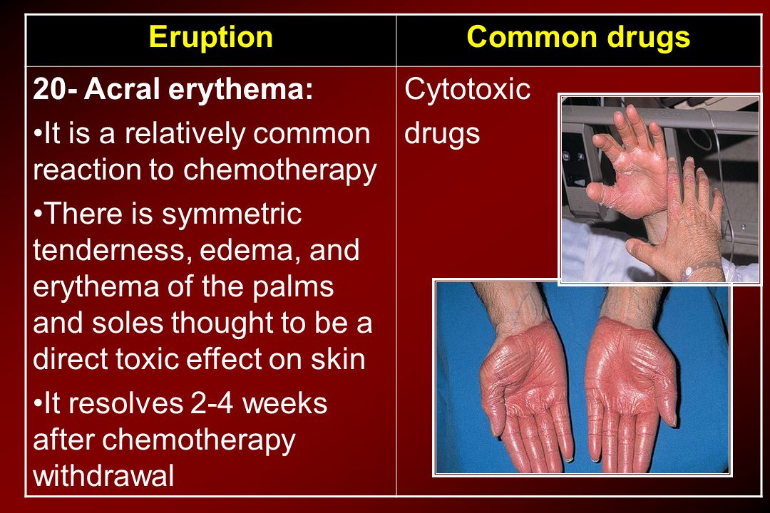 Common drugs Eruption. Cytotoxic. drugs. 20- Acral erythema: It is a relatively common reaction to chemotherapy.